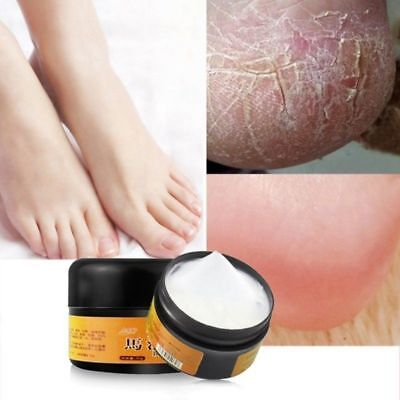 Horse Oil Feet Cream Gift for Simple Foot Feet Itch Blisters Anti-chapping