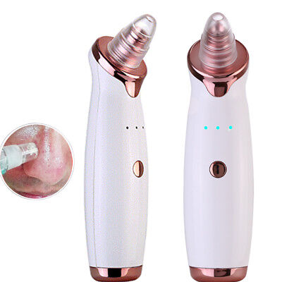 Electric Face Pore Cleanser Vacuum Suction Blackhead Extractor Acne Remover Tool