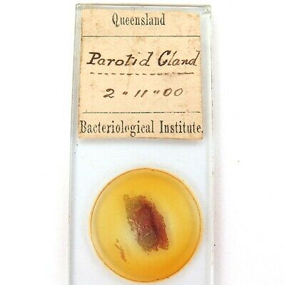 ".1900 ""Parotid Gland"" Microscope Slide. Queensland Bacteriological Institute."