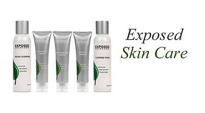 Exposed Skin Care ~ Kits ~ Acne Treatment Combining Science & Nature