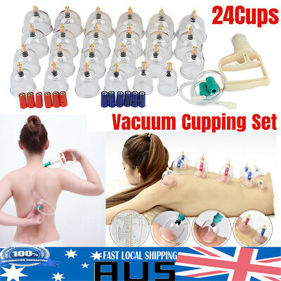 24 Cups Vacuum Cupping Set Massage Acupuncture Suction Massager Kit Pain Relief