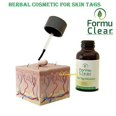 NATURAL HERBAL SKIN TAGS / WARTS / VERRUCA REMOVER 15ml. NO CHEMICALS