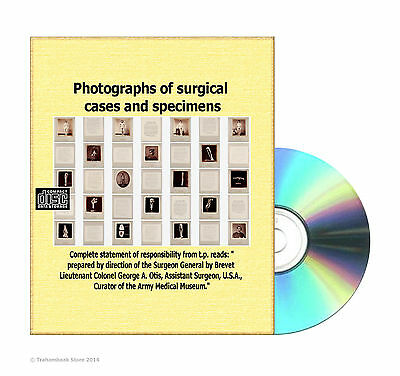 Photographs of surgical cases and specimens -Army Medical Museum- Books On CD