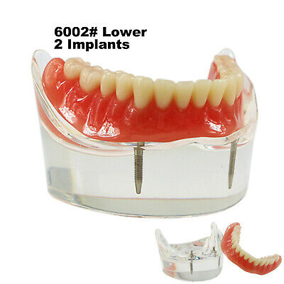 Dental Lower Inferior Teeth Model Overdenture 2 Implants Demo Model 6002 01