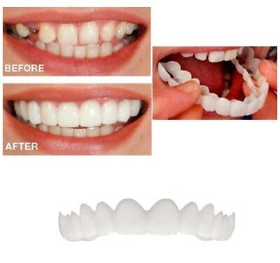 Snap On Perfect Smile White Teeth False Upper Denture Flex Temporary Fix Fits M
