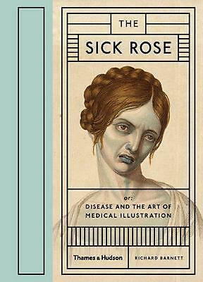 The Sick Rose by Richard Barnett Hardcover Book