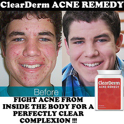 Clearderm Acne Pills Strong Tablets Spot-Free Clear Glowing Youthful Skin!