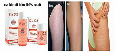 Bio-Oil Specialist Skincare for Scars,Stretch Marks 60ml (2 OZ)(Pack-6)