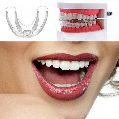 DIY Safety Teen Adult Teeth Care Straight System Orthodontic Anti-Molar Retainer