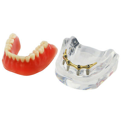 Dental Teeth Model Inferior Overdenture Precision 4 Implants Demo Golden Bar