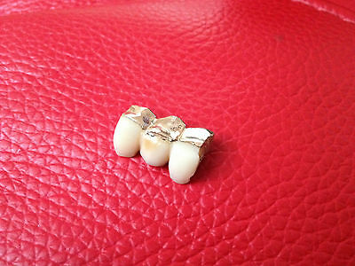 9ct gold mens teeth make into gold ring pendant or bracelet charm