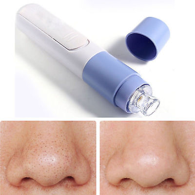 Useful Facial Pore Cleanser Cleaner Blackhead Zit Acne Remover