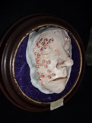 SMALLPOX - VICTORIAN STYLE HOSPITAL  MEDICAL DISPLAY  replica LIFE SIZED GAFF
