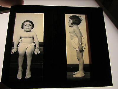Antique 1930s Medical Oddities Glass Slide #110 Photo child with Morquio Disease