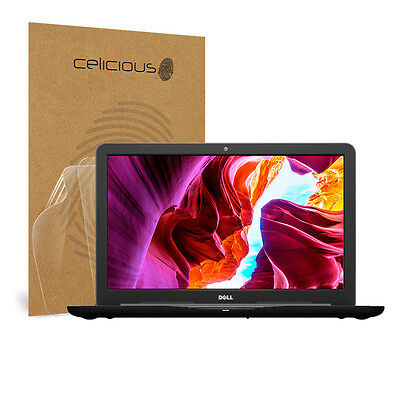 Celicious Vivid Dell Inspiron 15 5567 Touch Clear Screen Protector