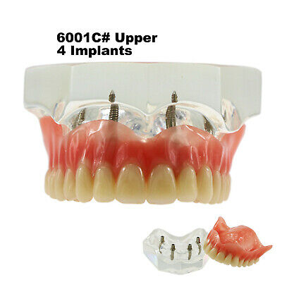 Dental Upper Teeth Model Overdenture Superior 4 Implants Demo Model 6001 02
