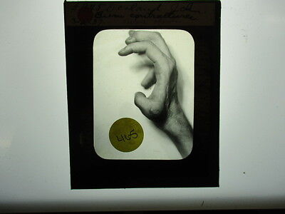 Antique 1930s Medical Oddities Glass Slide #465
