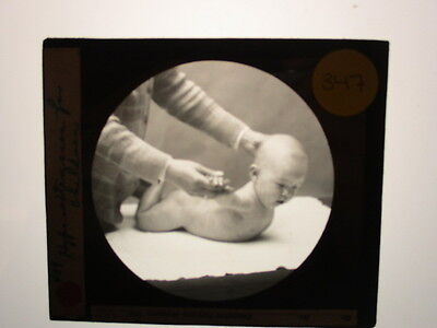 Antique 1930s Medical Oddities Glass Slide #347