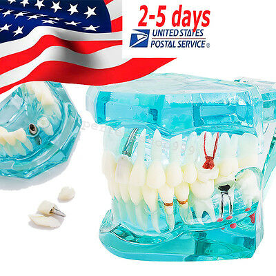 Dental Implant Study Analysis Teeth Disease Model Blue for Dentist Students-USA