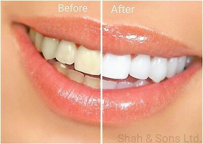 New Extra Strong Teeth/Tooth Whitener Whitening Dental Gel Pen Stains Remover