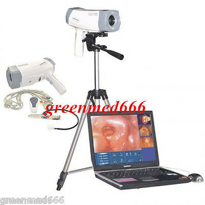 Digital Electronic Colposcope +Soft​ware SONY Camera 800,000 pixels+Tripod Clear