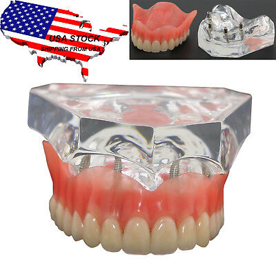 Dental Upper Demo Teeth Model Overdenture Superior + 4 Implants 6001 Clear USA