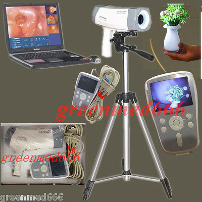 CE Electric Colposcope video SONY Carema 800,000 pixels Color LED Handle +Tripod