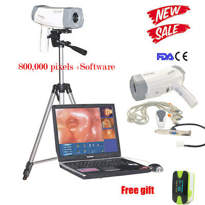 Electronic Vedio Colposcope SONY Camera 800,000 pixels Software Analysis Tripod