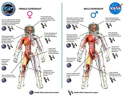 Nasa Graphic Differences In Space Health Effects By Gender - 8X10 Photo (Ab-474)