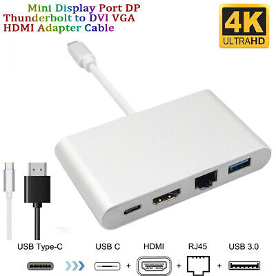For MacBook Mini 3 In 1Display Port DP Thunderbolt to DVI VGA HDMI Cable Adapter