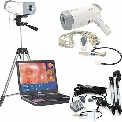 CE 800,000 pixels Color Video Electric Colposcope SONY Camera Tripod+foot switch