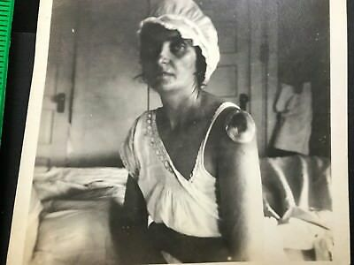 Skin Arm Infection Tumor Medical Disease Antique Photo Lot Early Medicine 1900's
