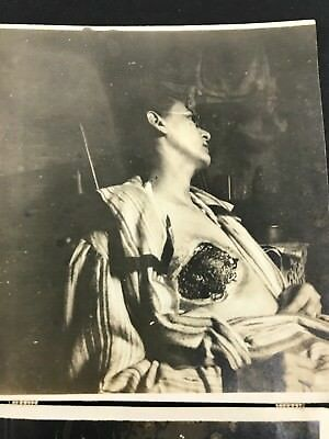 Mastectomy Tumor Woman Disease Antique vtg Photo Lot Early Medicine 1900's