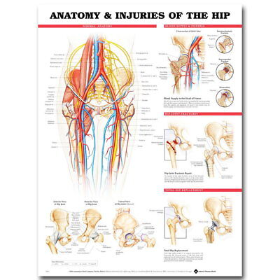 82877 Human Anatomy Injuries Of The Hip Medical Decor WALL PRINT POSTER AU