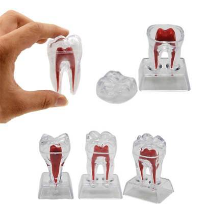 Dental Plastic Teeth Model Transparent Teaching Study Ornaments Tool Removable