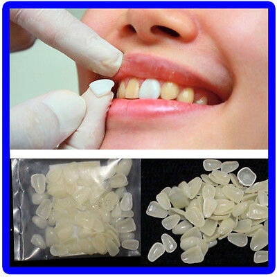 Dental Ultra-Thin Whitening Veneers Resin Teeth Upper Anterior Shade 100 Pcs SW