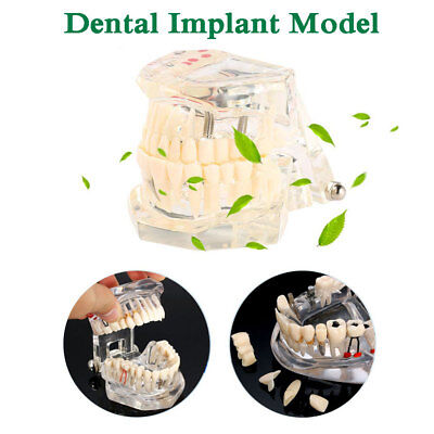 Dental Implant Teeth Model Teaching Education Disease Restoration Bridge Caries