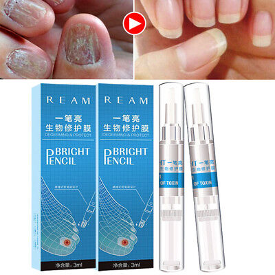 3ml Nail Fungus Treatment Liquid Toenail Anti Fungal Nails Care