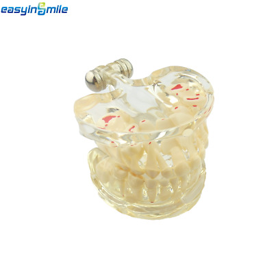 Dental EASYINSMILE Implant Pathological Transparent Teeth Teaching Adult Model