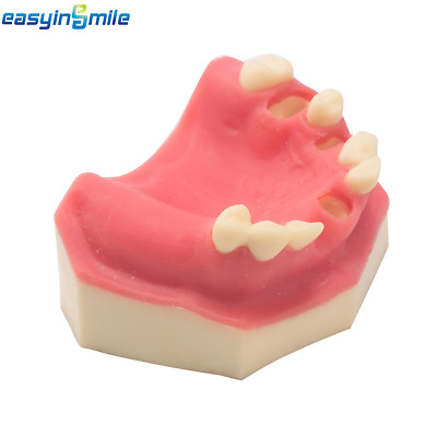 EASYINSMILE Dental Implant Practice Lower Jaw Typodont Teeth Model with Gingiva