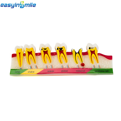 EASYINSMILE 1Pc/Pack Dental Caries Developing Tooth Typodont Demonstration Model
