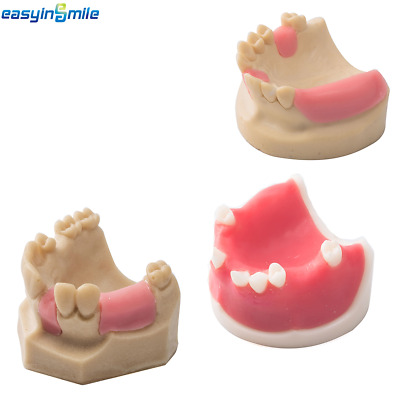 1Pc 3 Type Dental Teeth Missing Silicon Rubber Model Upper Jaw Demo EASYINSMILE