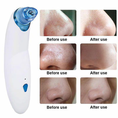 Electric Facial Skin Care Pore Blackhead Cleaner Remover Vacuum Acne Cleanser
