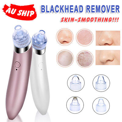 Blackhead Removal Facial Skin Care Pore Electronic Cleaner Acne Remover Vacuum