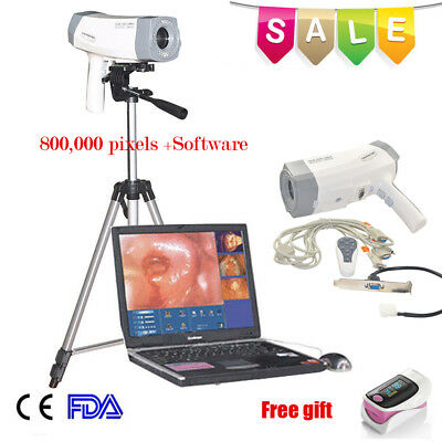 Electronic Colposcope Video SONY Image Pap Smear Test Tripod + Software CE FDA