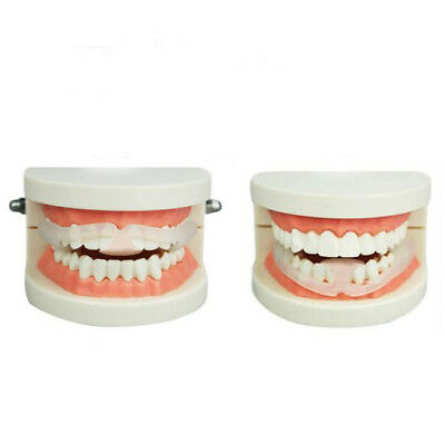 Mouth Guard Anti Snore Mouthpiece Stop Teeth Grind Anti Snoring Bruxism Body SA