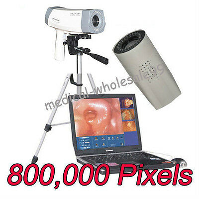 Sale Digital Video Electronic Colposcope SONY 800,000 Camera Tripod +Software CE