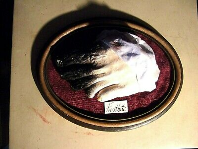 Victorian Style Medical Display - Frostbite Of The Foot