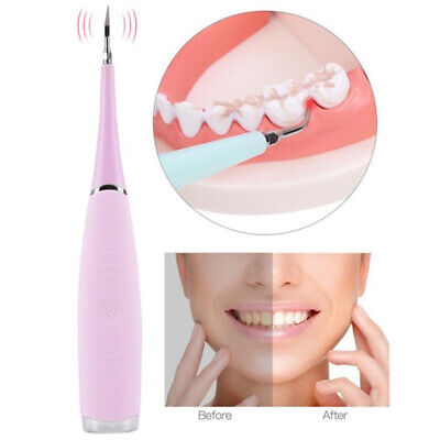 Electric Dental Tartar Calculus Plaque Stains Remover Polisher Whitening Tool