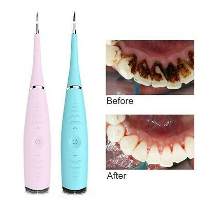 Electric Dental Scaler Tartar Calculus Plaque Remover for Teeth Clean Whitening